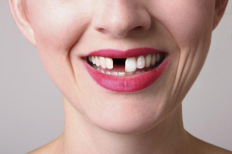 Fehlender Zahn